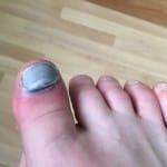My poor toe