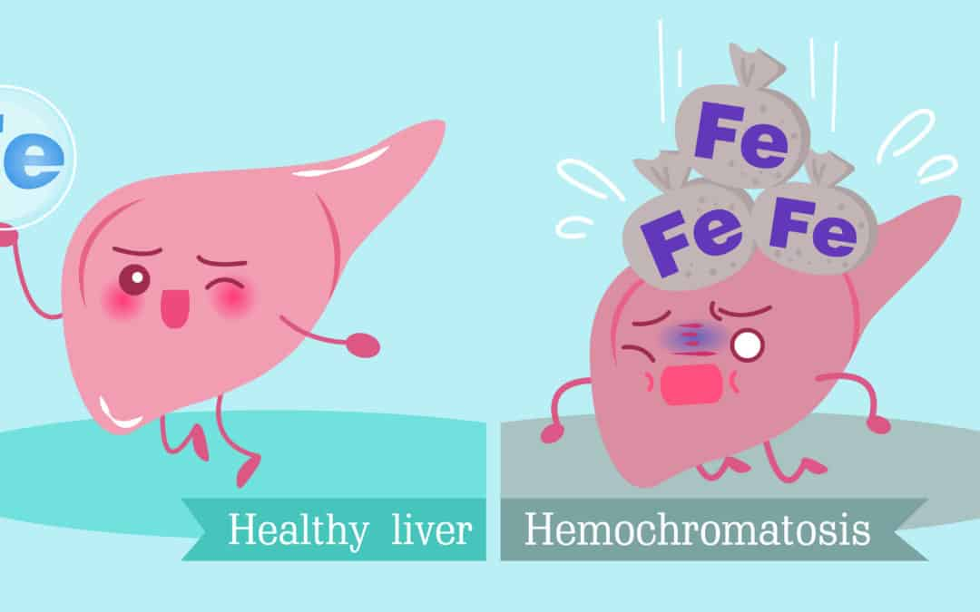 illustration of a health liver vs. a liver with iron overload